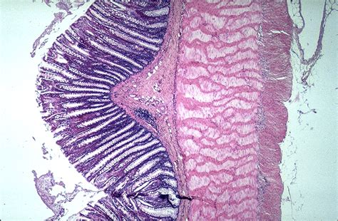 Large Intestine Color Images